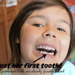 She Lost Her First Tooth!
