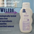 Weleda Skin Care: Treating her Mild Eczema Naturally